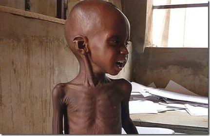 ילד רעב בניז'ר